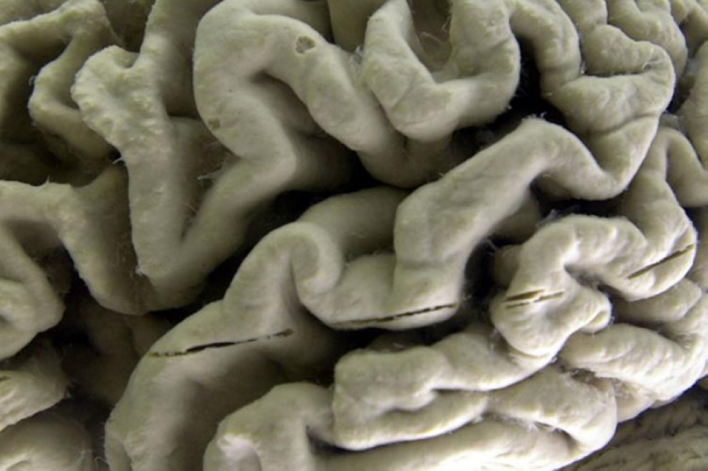 USA. This October 7, 2003 file photo shows a close-up of a human brain affected by Alzheimer's disease on display at the Museum of Neuroanatomy at the University at Buffalo in Buffalo, New York. (AP)