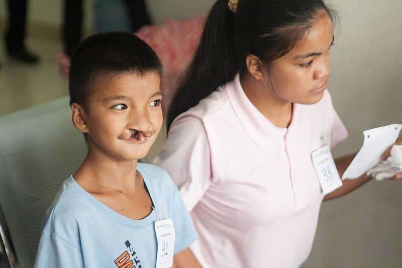 The #giveasmile campaign targets to fund free surgeries for 1,000 children with cleft deformities. (Contributed Photo)