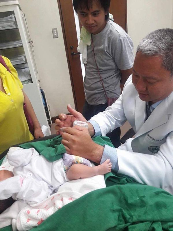 BAGUIO. Doctor Jean Leung tends to patient at the newly open clubfoot clinic at Benguet General Hospital offering free casting and bracing treatment every Monday from 9 a.m. to 12 noon. (Contributed photo)