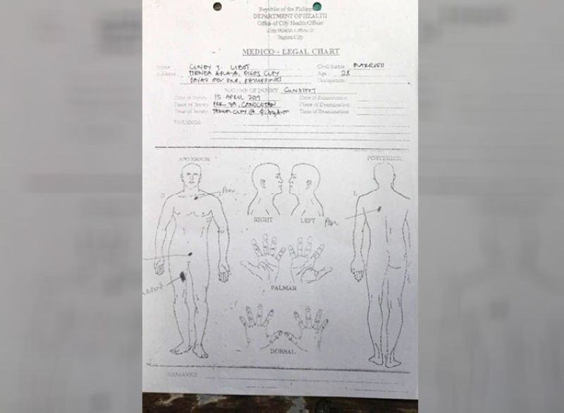 DAVAO. Medical-legal report on the autopsy done on Cindy Tirado Libot's body. (Photo courtesy of Police Regional Office-Davao)