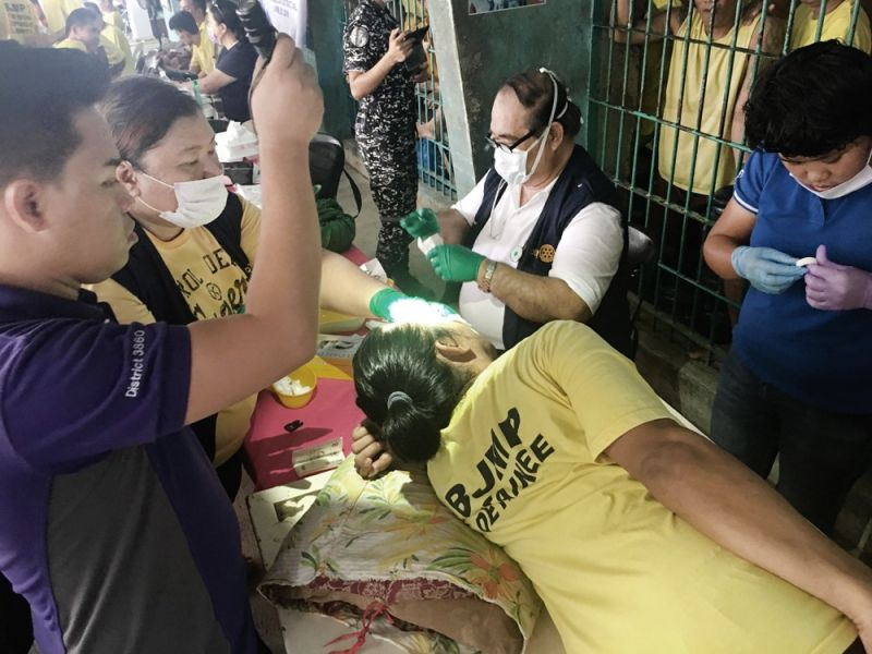 SURGERY IN JAIL. Dr. Wyben Briones (center, with glasses and surgical mask), a neurosurgeon and past president of  the Rotary Club of Metro Cebu, prepares for the cyst surgery of an inmate on a makeshift operating table and improvised lighting inside the Medellin District Jail in Barangay Kaputatan Sur. (CONTRIBUTED FOTO)