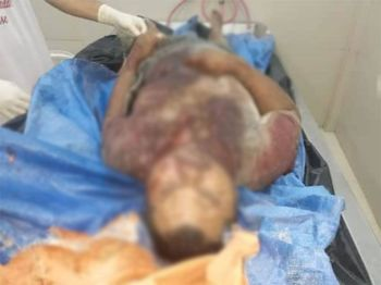LEYTE. Killed barangay captain in Hilongos, Leyte. (Contributed photo)