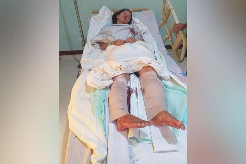 Public school teacher Zhydee Cabañellez was injured after being shot by unidentified men on her chest and feet in Valencia City on Tuesday. (Photo courtesy of ACT)