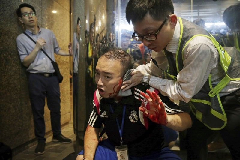 HONG KONG. District councilor Andrew Chiu receives medical treatment in Hong Kong, on Sunday, November 3. Riot police stormed several malls in Hong Kong on Sunday in a move to thwart more pro-democracy protests, though violence did break out when a knife-wielding man slashed several people and bit off part of the ear of a local pro-democracy politician. (AP)
