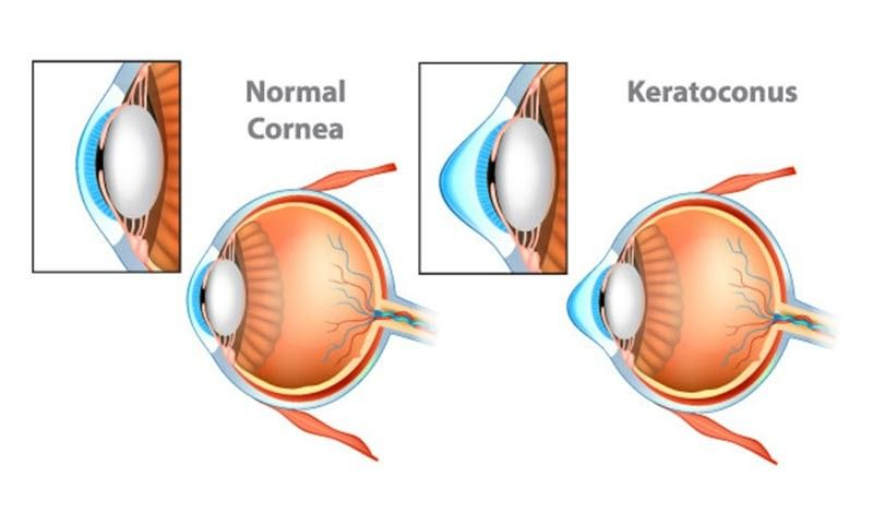 Photo from Global Eyecare Center