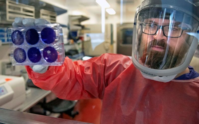 USA. Matt Dunn, a researcher for the Center for Vaccine Research at the University of Pittsburgh, holds dead samples of the coronavirus (Covid-19), Thursday, February 27, 2020, at the Biomedical Science Tower 3 in Oakland, Pennsylvania. (AP)