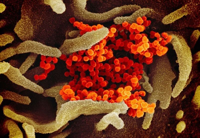 USA. This undated electron microscope image made available by the US National Institutes of Health in February 2020 shows the Novel Coronavirus SARS-CoV-2, orange, emerging from the surface of cells, green, cultured in the lab. Also known as 2019-nCoV, the virus causes Covid-19. The sample was isolated from a patient in the US. (AP)