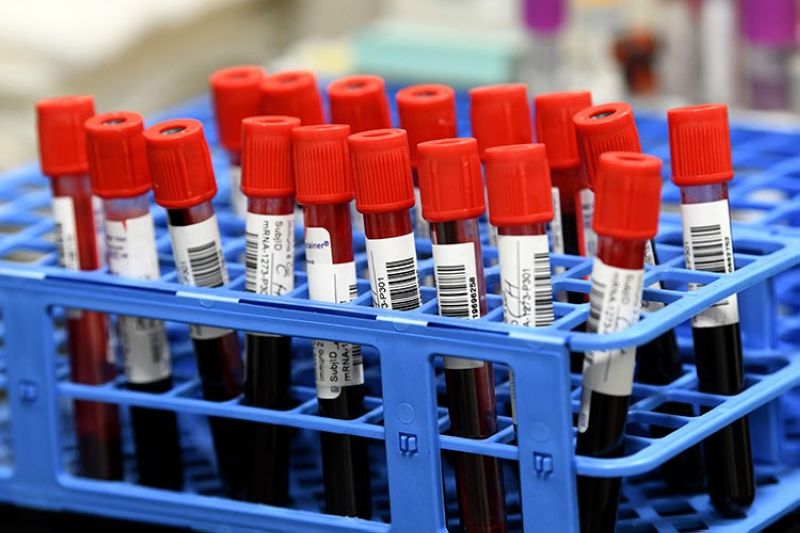 USA. In this September 2, 2020 file photo, blood samples from volunteers participating in the last-stage testing of the Covid-19 vaccine by Moderna and the National Institutes wait to be processed in a lab at the University of Miami Miller School of Medicine in Miami. (AP)