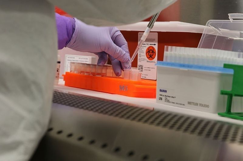 HAWAII. In this photo taken in March 2020, a microbiologist tests a sample for Sars-CoV-2 in Hawaii's Department of Health laboratory. (File)